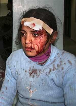Una niña herida en el atentado. (Foto: AFP)