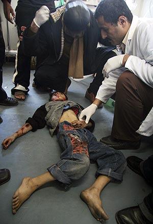 Médicos palestinos examinan el cadáver de un niño en el hospital de Shifa. (Foto: AP)