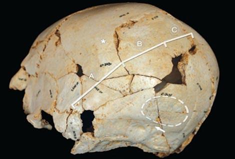 Cráneo reconstruido del menor con craneosinostosis de Atapuerca. / PNAS