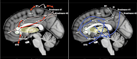 Cerebros en estado de reposo de una persona con dolor crónico (izquierda) y de otra sana