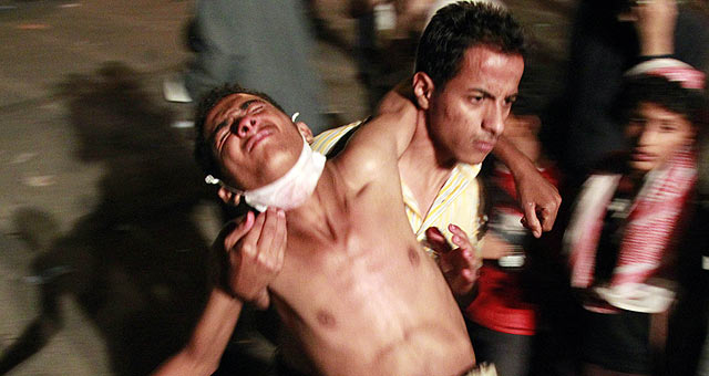 Uno de los manifestantes heridos durante la represión de las fuerzas de seguridad en Taiz. | Reuters