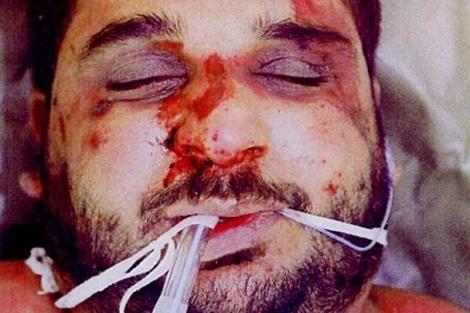 El iraquí Baha Musa tras sufrir asfixia y 93 lesiones graves en su cuerpo. | E.M.