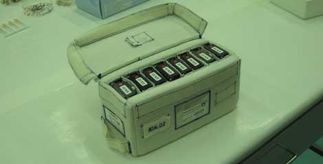 Las muestras de sangra de donantes sanos se mandaron a la Estación Espacial Internacional. | ESA