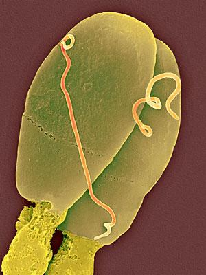 Dos espermatozoides infectados con la bacteria 'Treponema pallidum'. (Foto: Dennis Kunkel)