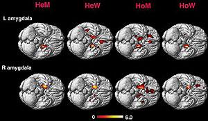 La imagen muestra las diferencias entre el cerebro de personas homo y heterosexuales. (Foto: PNAS)
