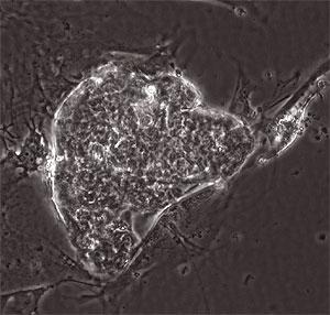 Muestra de las células madre de origen testicular. (Foto: Thomas Skutella)