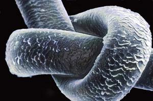 Un perlo humano visto a través del microscopio. (Foto: CIE)