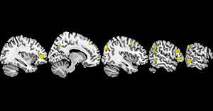 Áreas del cerebro que están involucradas con la creencia en Dios. (Foto: NIH)