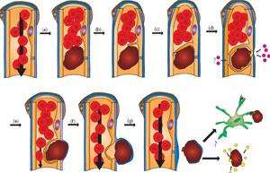 Cómo se encapsulan y expulsan los coágulos en los vasos sanguíneos. (Foto: Nature)