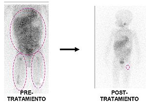 Imagen de la gamagrafía del paciente (Foto: Cancer Gene Therapy)