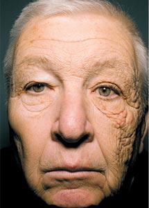 Amplíe para ver el rostro completo de este paciente de 69 años.| Jennifer R.S. Gordon, M.D. y Joaquin C. Brieva, M.D. | NEJM