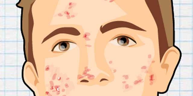 La peladura de la piel del acné